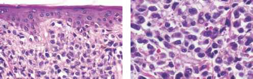 erythema multiforme differential diagnosis pdf