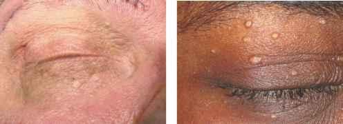 Milia On Eyelid - Eyelid Diseases - Central Lakes Medical